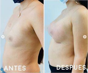 Mamoplastia de aumento - Dr. Hugo Javier Mejía Cuello