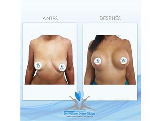 Levantamiento de senos-701283