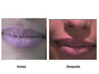 Aumento de labios-509917