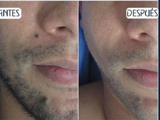 Dermatología-581528