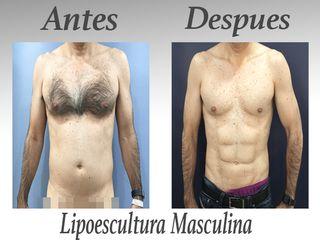 lipo masculina 3 meses