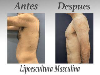lipo masculina IV