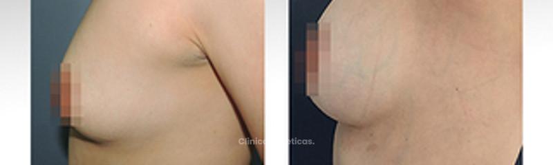 mamoplastia de aumento II