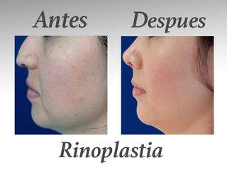 rinoplastia I