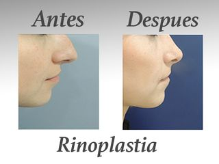 rinoplastia II