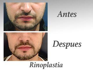 rinoplastia III