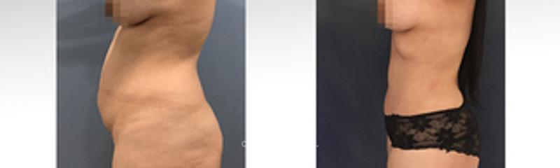 lipoabdominoplastia III - vista de perfil