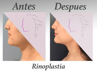 Rinoplastia-578742