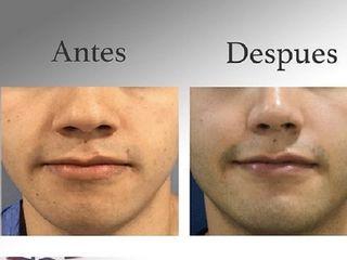 Antes y despues de Rinoplastia masculina