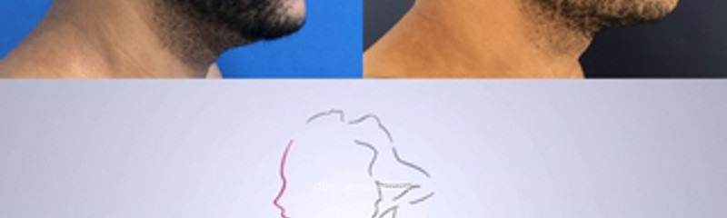 rinoplastia hombre