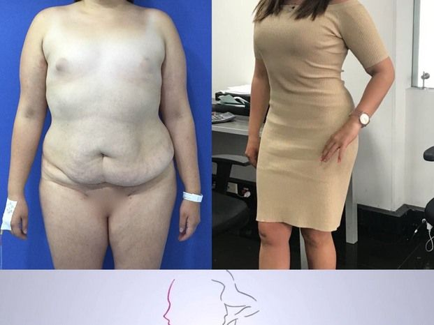 Dr. Jaime Pachón - Cirugía plástica