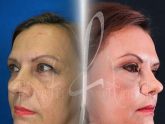 Lifting facial-625566