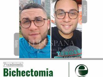Bichectomía-632720