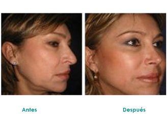 Cirugía Plástica-516429