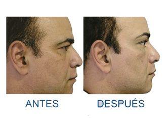 Rejuvenecimiento facial-509789