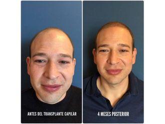 Trasplantes capilares-639270