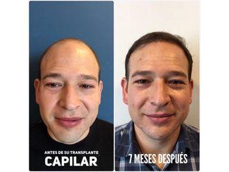 Trasplantes capilares-639271