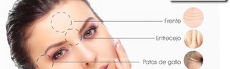Eliminación de arrugas con Toxina Botulínica