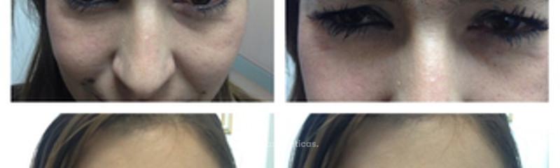 Arrugas con toxina botulinica