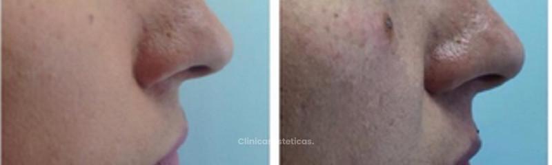 Antes y despues de tratamiento contra cicatrices