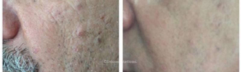 Antes y despues de eliminacion de nevus