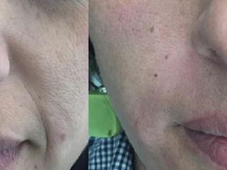 Antes y despues de acido hialuronico