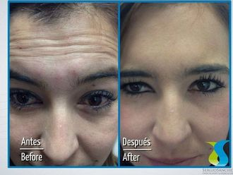 Rejuvenecimiento facial-598949