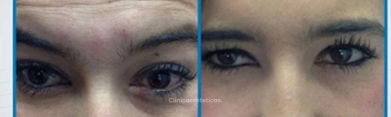 Antes y despues de tratamiento contra las lineas de expresion