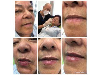 Aumento de labios - Dr. Sergio Andrés Sánchez Peña