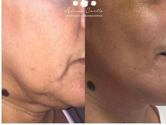 Lifting facial-606896