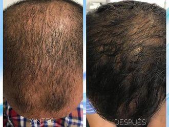 Alopecia - 624296