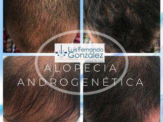 Alopecia - 628157