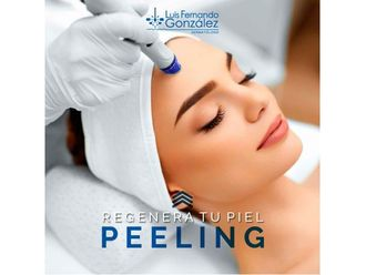 Peeling - 637391