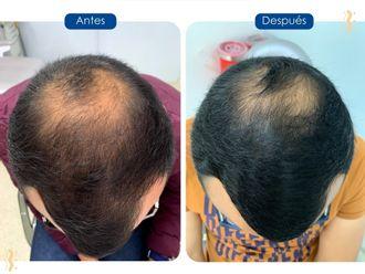 Alopecia-739759