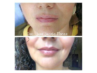 Aumento de labios-644652