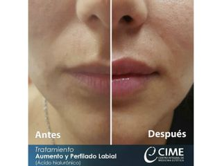 Perfilado y Aumento de labios con ácido hialurónico