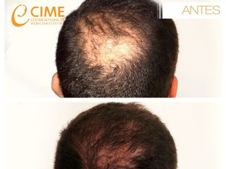 Alopecia - 613076