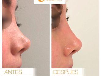 Rejuvenecimiento facial-619073