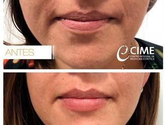 Aumento de labios-623195