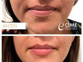 Aumento y perfilado de labios