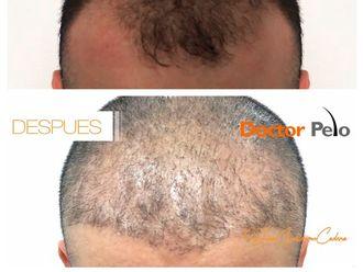 Tratamientos para el cabello-625629