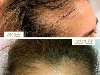 Implantes de cabello - 630847