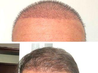 Implantes de cabello - 630848