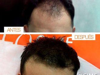 Tratamientos para el cabello-632067
