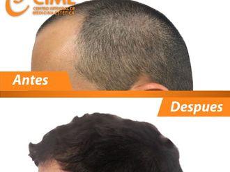Alopecia - 636770