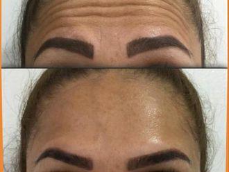 Rejuvenecimiento facial-740650