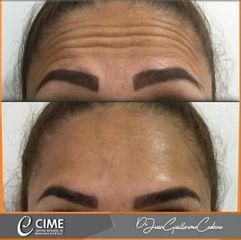 Rejuvenecimiento facial - Dr. Juan Guillermo Cadena