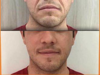 Rejuvenecimiento facial-740651