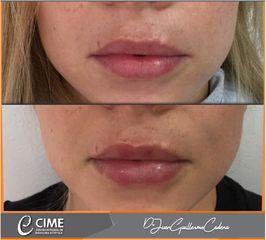 Aumento de labios - Dr. Juan Guillermo Cadena
