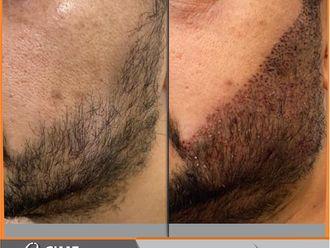 Tratamientos para el cabello-741345